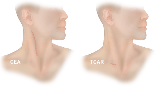 TCAR vs CEA procedure scars