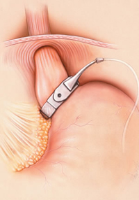 LAP-BAND adjustable gastric band safety