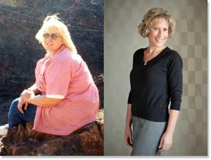 Lynn's weight loss of close to 150 lbs was possible with LAP-BAND bariatric surgery at Community