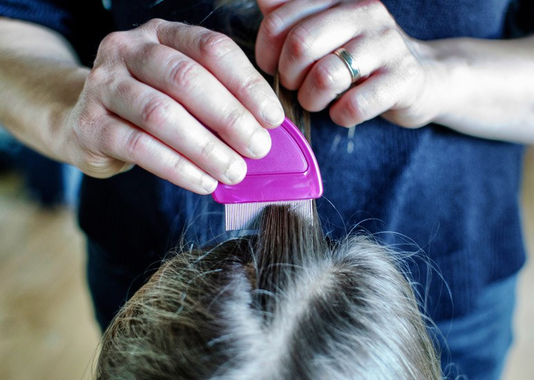 Lice and nit combing