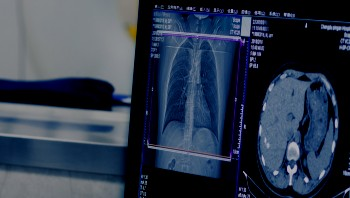 Medical imaging and radiology